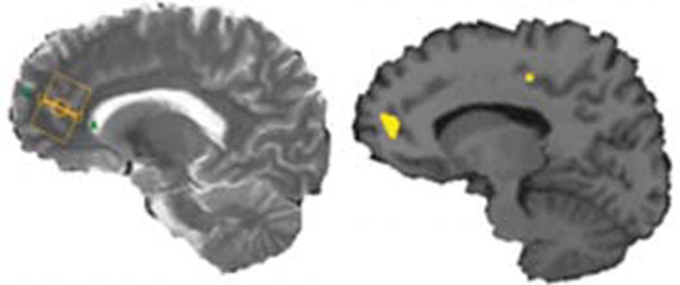 Neuropsychiatric Imaging