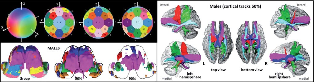 fMRI  Resting State and DWI Examinations